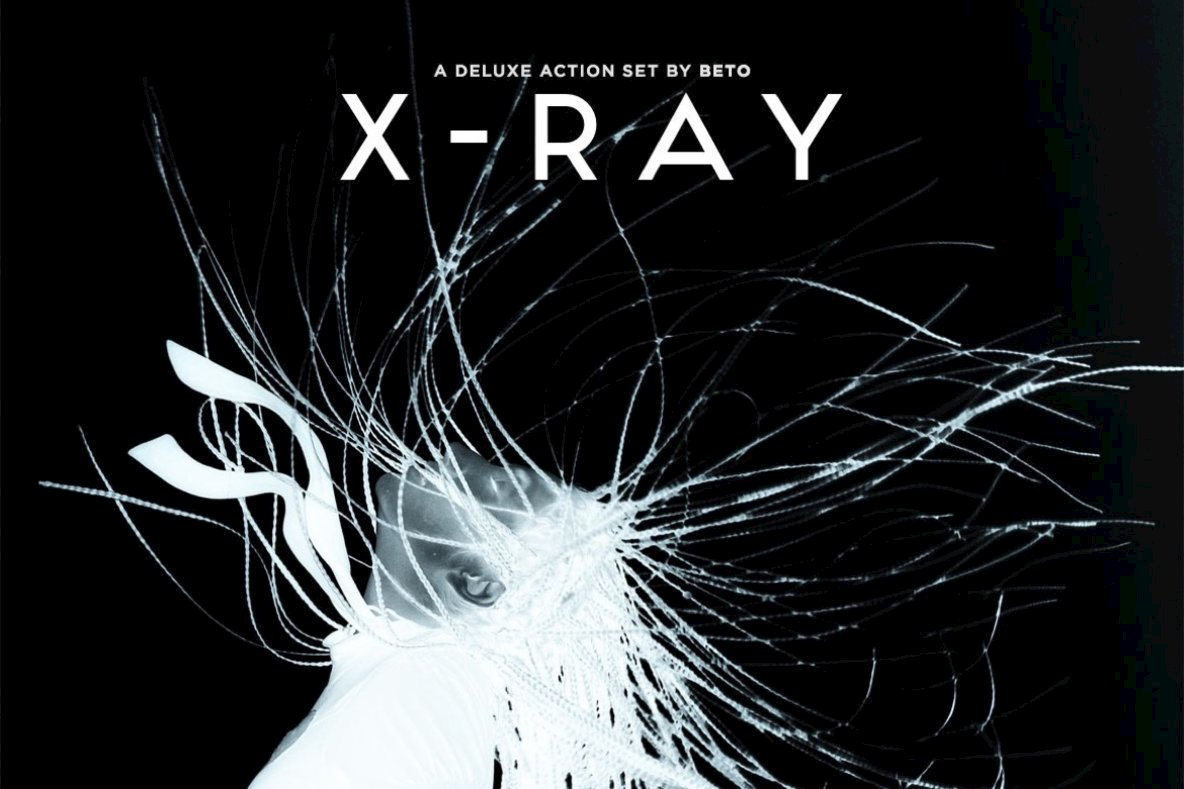 X Ray Action Set
