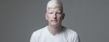 Futuristic Albino Man  09