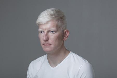 Futuristic Albino Man 14