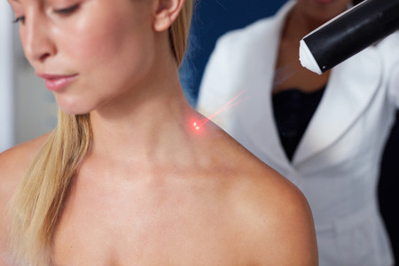 Localized cryotherapy session to the neck