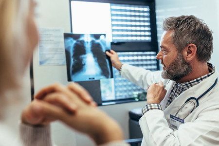 Doctor discussing scan results with patient