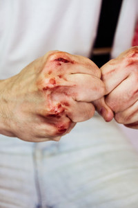 man039s hands with blood