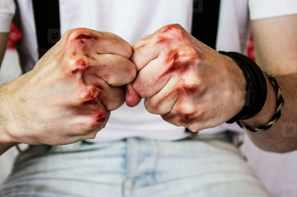 man s hands with blood