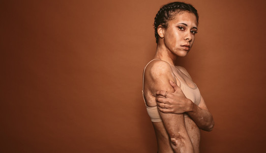Vitiligo affected young woman in studio