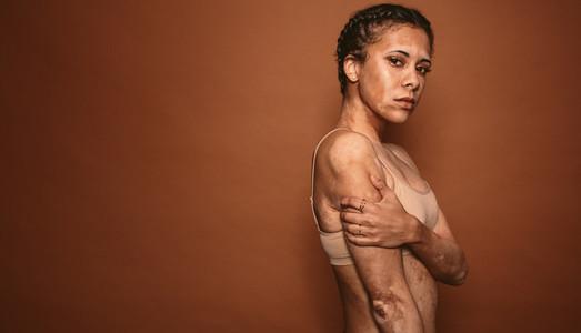 Vitiligo affected young woman in studio