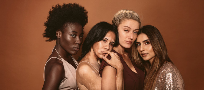 Women friends with different skin types
