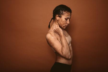 Skinny woman affected with vitiligo
