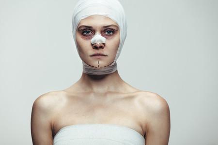 Woman after face lift surgery