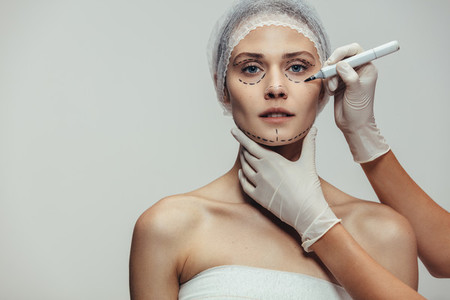 Woman face marked before plastic surgery