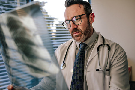 Doctor looking at chest x ray of his patient