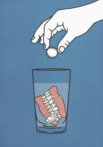 Hand dropping denture cleaner tablets into glass of water with dentures 01