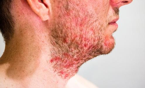 Man with seborrheic dermatitis in the beard area