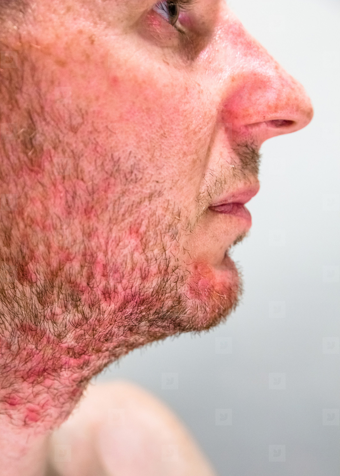 Man with seborrheic dermatitis in the beard area