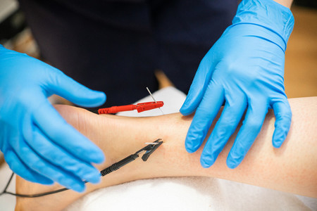 Electro acupuncture dry with needle connecting machine