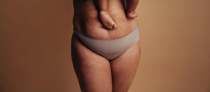 Postpartum Depression Abdomen The Human Body Human Abdomen Skin   Human Skin   Women   Muscular Build   Body Care Care   Stomach   Fat   Nutrient   Pregnant Scar  Shape   Stretch Mark Stretching  Wais