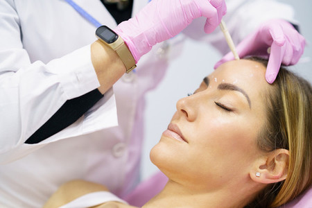 Aesthetic doctor painting on the face of his patient the areas to be treated with botox