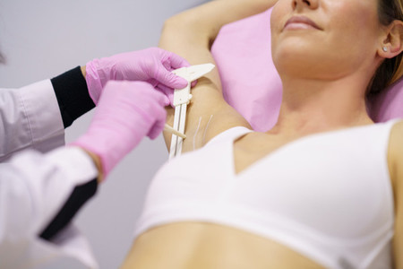 Doctor painting on the armpit of her patient  the area to be treated for hyperhidrosis