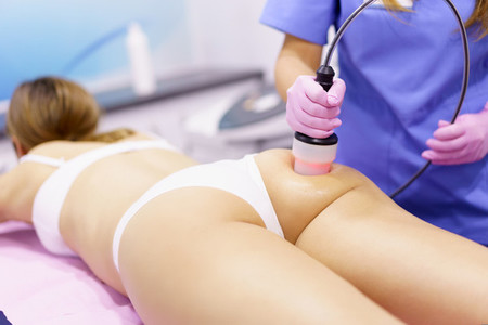 Woman receiving anti cellulite treatment with radiofrequency machine in an aesthetic clinic