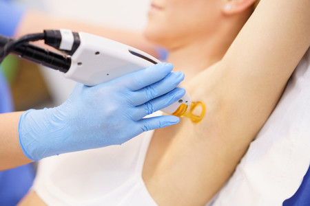 Woman receiving underarm laser hair removal at a beauty center
