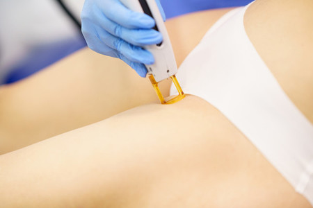Woman receiving groins laser hair removal at a beauty center