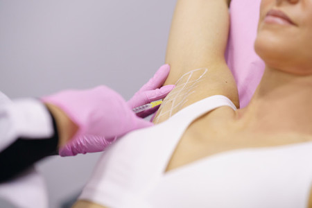 Doctor makes intramuscular injections of botulinum toxin in the underarm area against hyperhidrosis