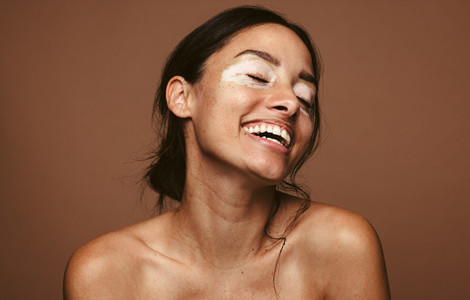 Happy woman with skin condition