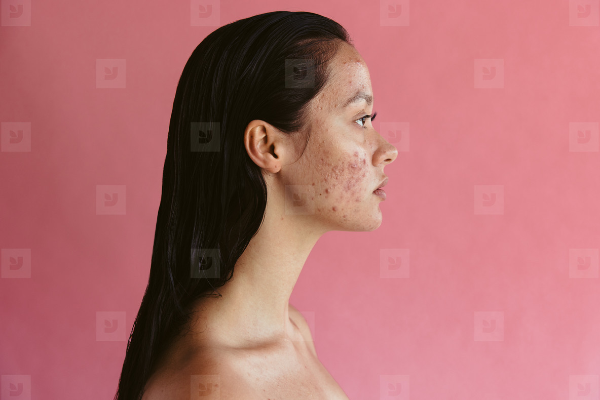 Portrait of woman with skin problem