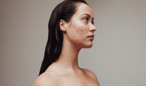 Stress and depression due to skin problems