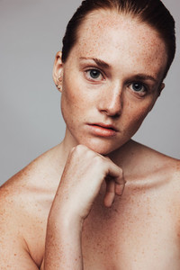 Close up of woman with freckles on body