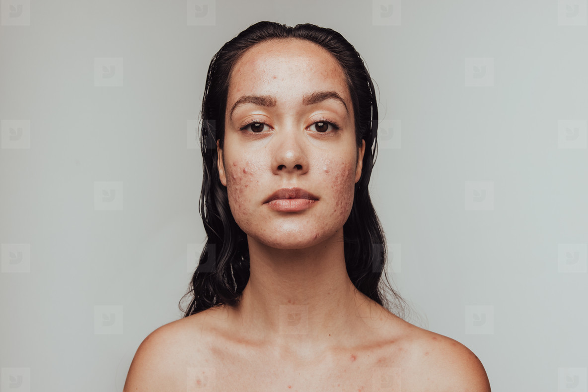 Portrait of woman having skin problems