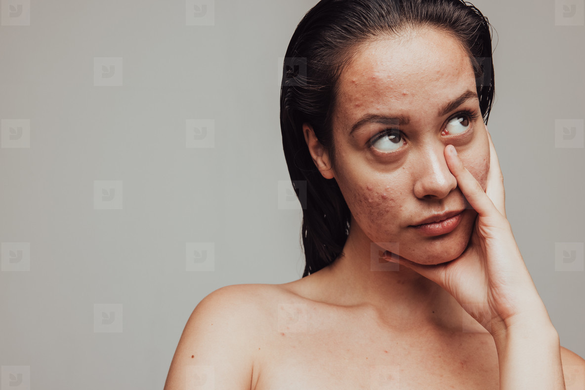 Woman frustrated about skin problems