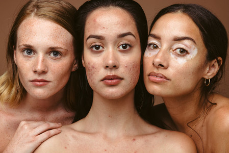 Stong woman with skin imperfections