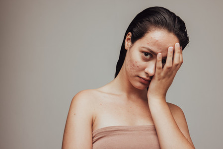 Portrait of woman with acne inflammation