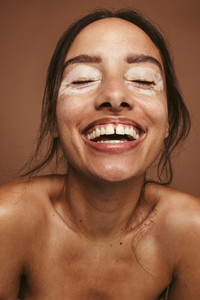 Woman embracing her vitiligo