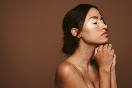 Skin problems cause insecurities and low self esteem