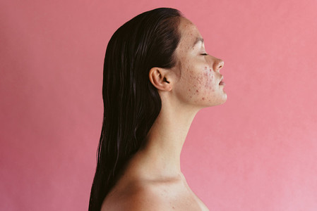 Stress can lead to acne inflammation