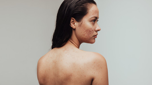 Woman with skin problems