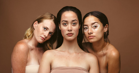 Skin problems can be caused by stress