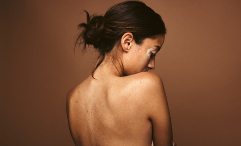 Portrait of woman with skin condition