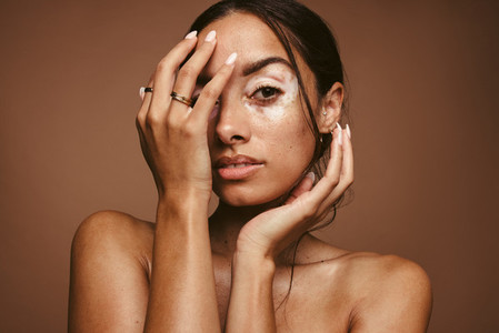 Insecurities of women due to skin problems