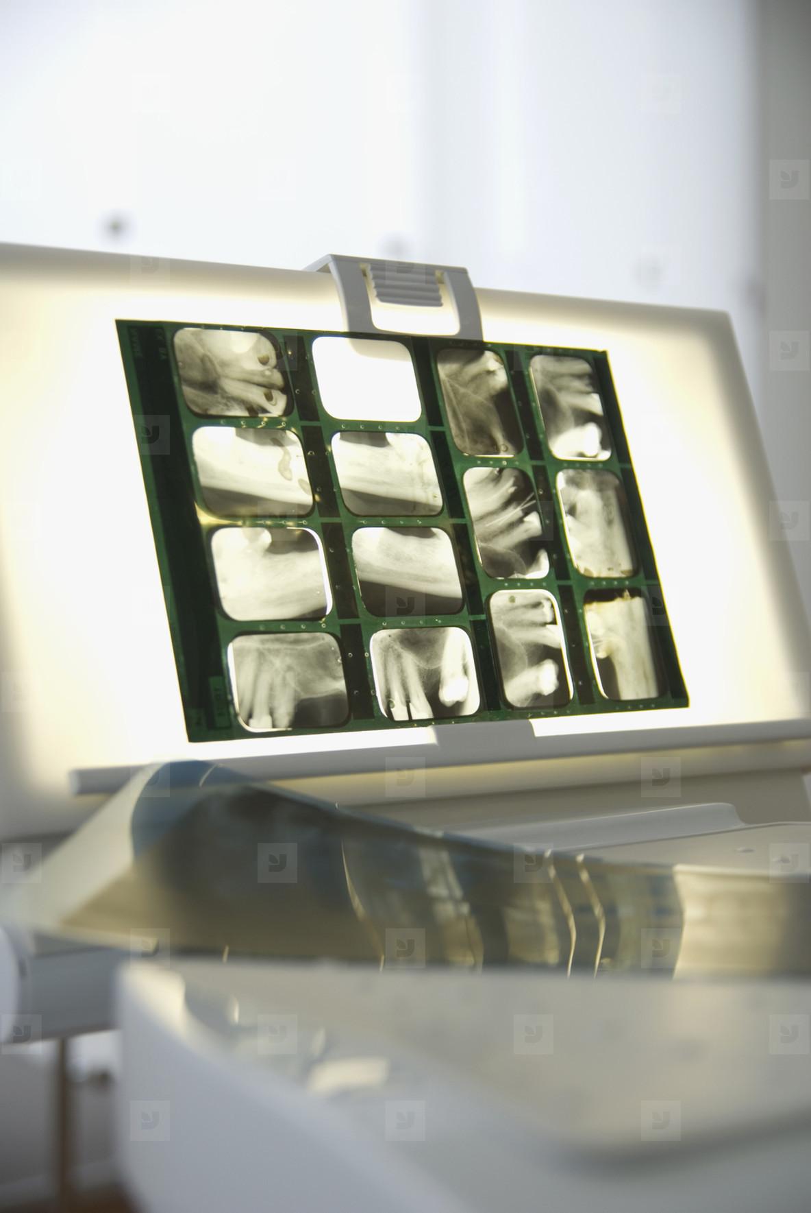 Dental Devices  14