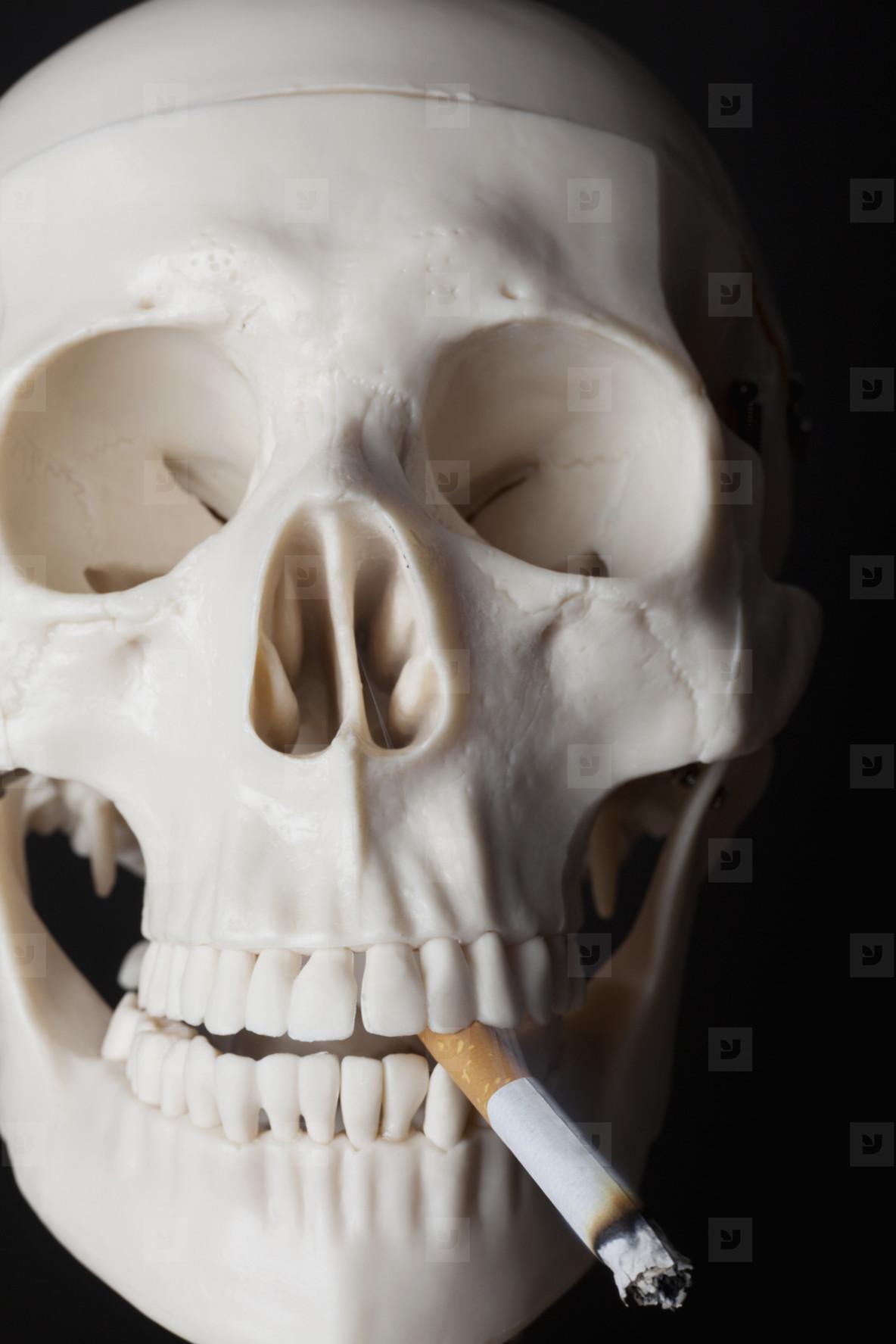 Skeleton Lives  17