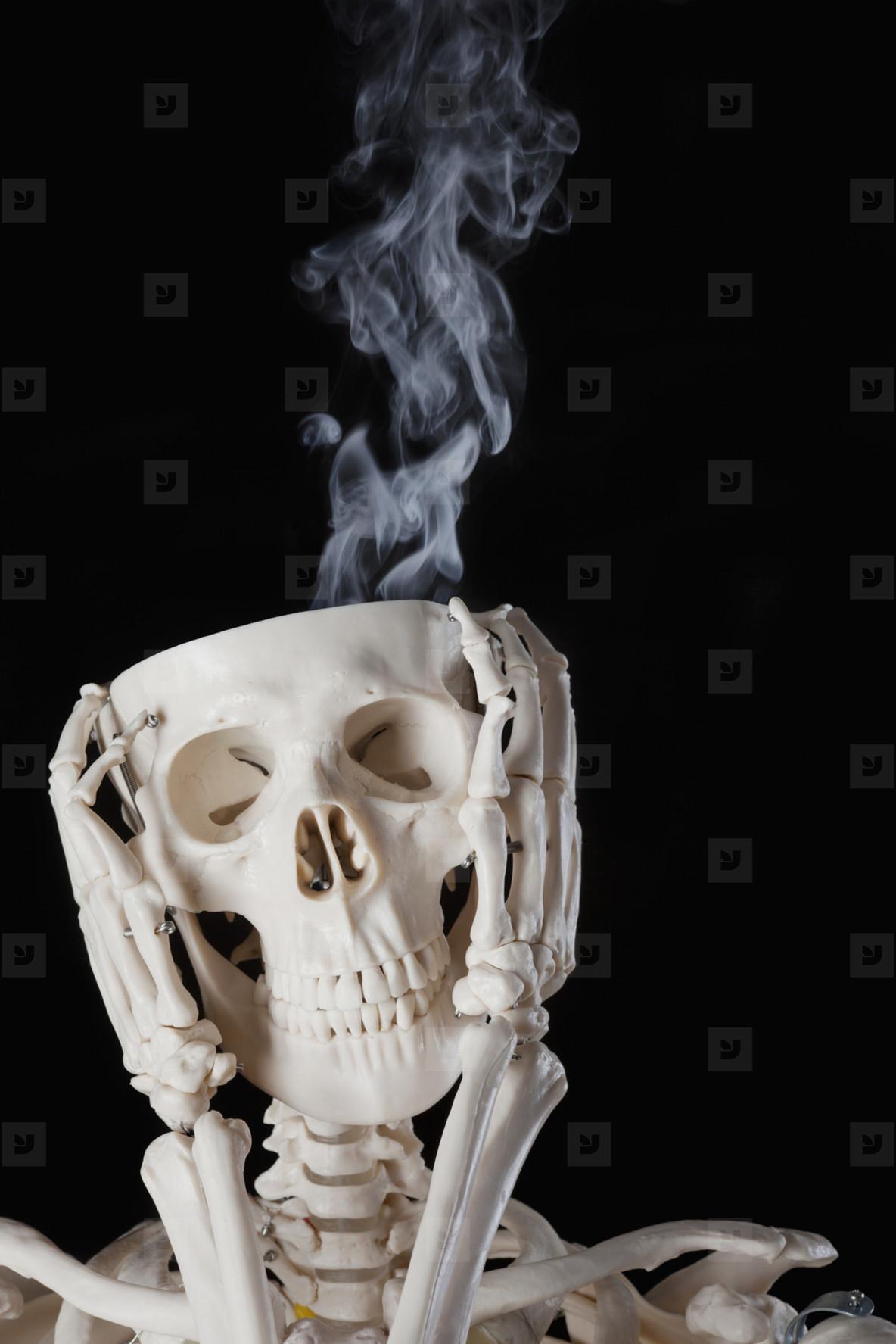 Skeleton Lives  25